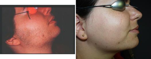 epilateur electrique visage femme