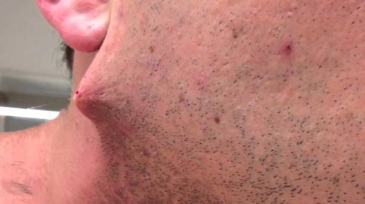 les poils sous la peau